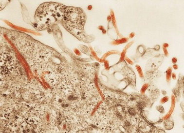 virus-ebole1