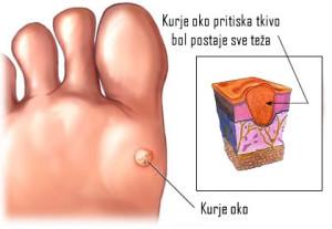 kurje_oko_na_stopalu-300x207